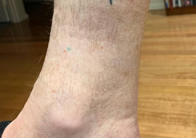 tattoonumber11-after