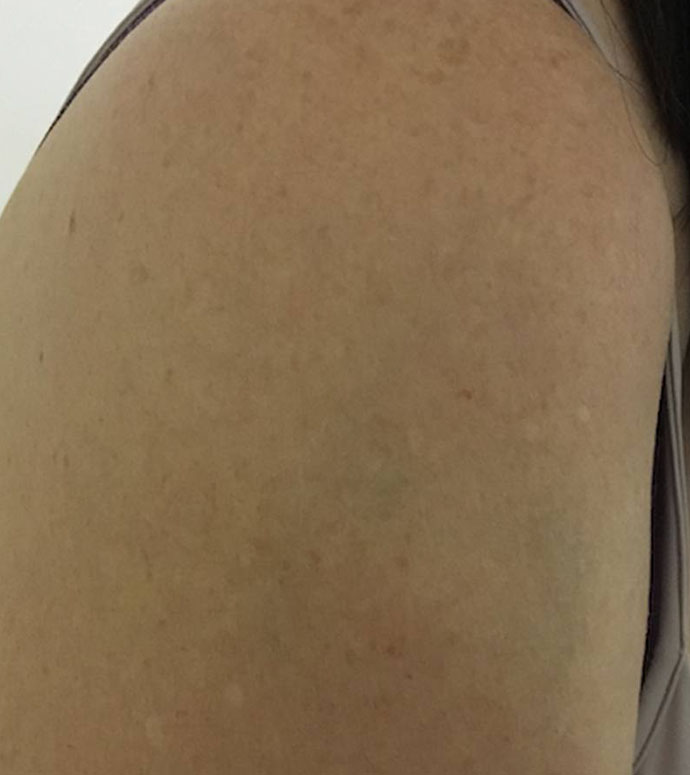 tattoonumber18-after