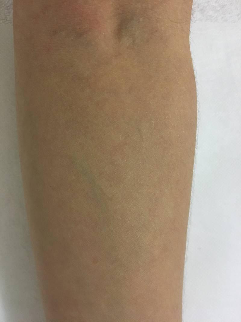 tattoonumber5-after