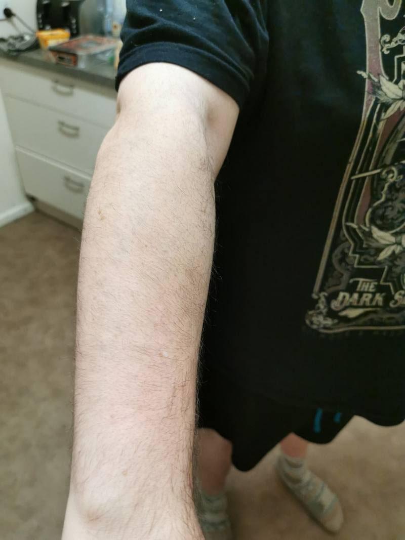 tattoonumber8-after